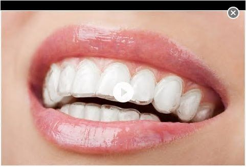 If you are looking for information on how clear braces work and the options available then this video will show you the options that you have. https://www.youtube.com/watch?v=E0-kixghGgc  #clearbracescardiff #invisablebraces #clearbraces #birchgrovedentalpractice