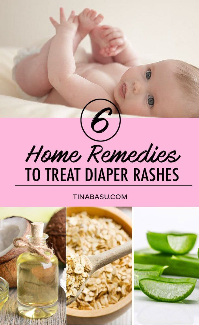 Home Remedies To Treat Diaper Rash Diaper Rash Diaper