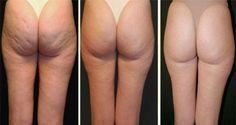 La plupart des gens, surtout les femmes ont le problème commun appelé cellulite. Aujourd'hui, il existe toutes sortes de crèmes et lotions qui sont prometteuses pour aider à ce problème ennuyeux. De nombreux produits cosmétiques