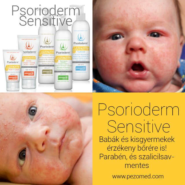 http://www.psorioderm.com/en/about-our-products/psorioderm-sensitive/psorioderm-sensitive-product-line:101