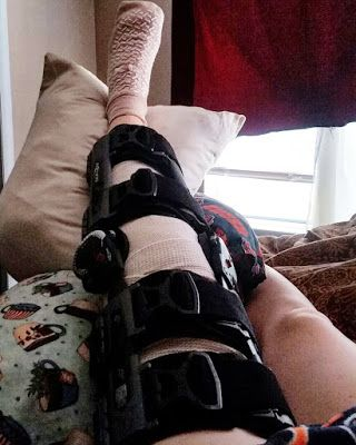 My Ramblings Of Day 1 Amp 2 Post Knee Surgery Acl Mcl