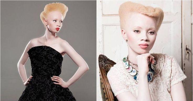 Thando Hopa, model albino sekaligus pengacara sukses dari Afrika