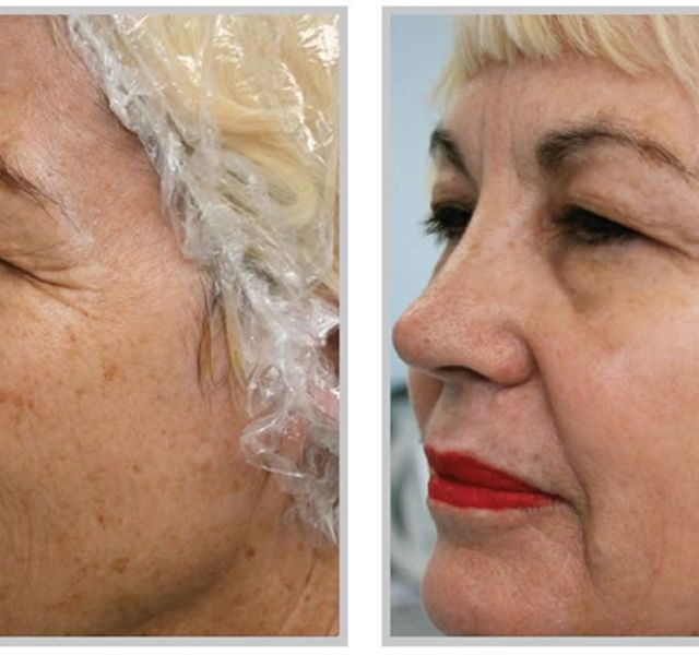 A kor előrehaladtával az arcon és a végtagon barnás bőrelszíneződések, úgynevezett öregedési foltok jelennek meg. Nem kell ezentúl vele együtt élned!