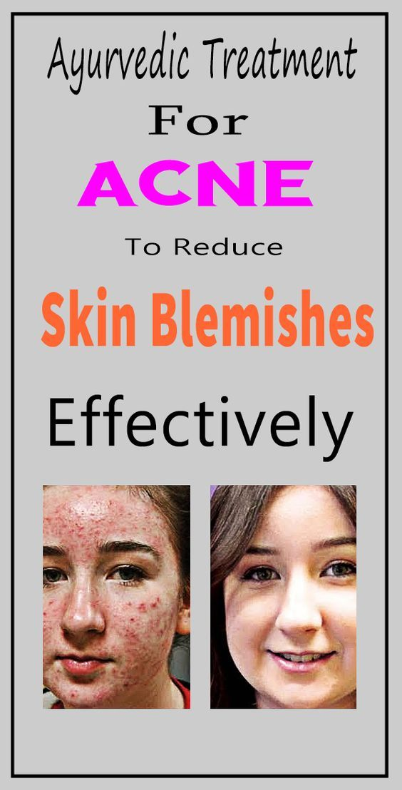 Easier tell, facial blemish treatments sorry, that