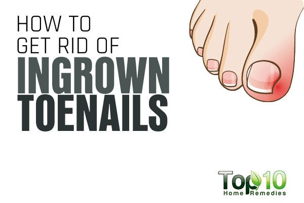 Natural Treatments for ingrown toe nails.