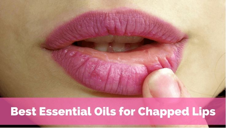 The best essential oils for chapped lips that really work and how to use them. Lavender, peppermint, jasmine, and homemade lip balm recipes.
