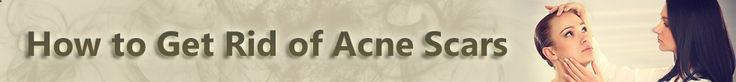 visit our site acnescartreatment... for more information on How to get rid of acne scars.There are several Home Remedies For Acne to recover your acne quickly. You are just one of the bigger percentages of the population who have actually got messed up huge time with skin specialists and nonprescription acne treatment products. Acne is the most basic skin disorder which naturally occurs first in the teen.
