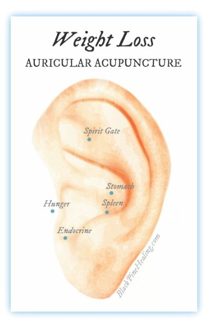 Auricular acupuncture for weight loss: Shown in study to reduce waist circumference and BMI.