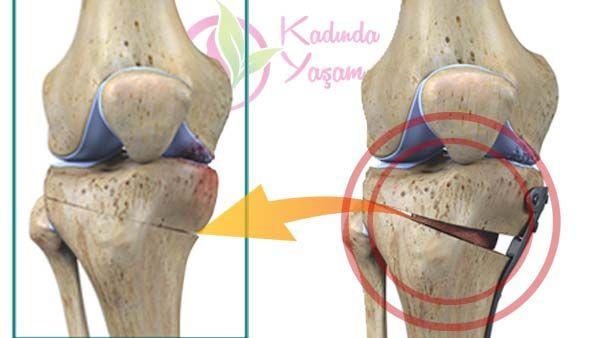 Bu yazımızda kemik erimesinin nedenlerini ve kemik erimesinin nasıl önleneceğini anlatacağız. Dr.Feridun Kunak'tan kemik erimesi kürünü paylaşacağız.