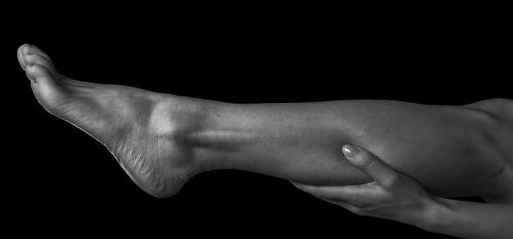 Woman holds her leg, pain in the female calf muscle, monochrome image
