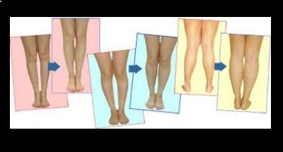 Bowlegs Remedy.Vital 101-Surgery-Free Remedy For Bow Legs - Bowlegs-Remedy.Com