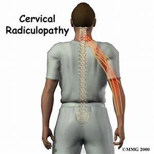 cervical disc images and nerve paths - Yahoo Image Search Results