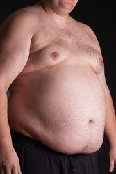 How to Tell If You Have Gynecomastia & How To Fix It