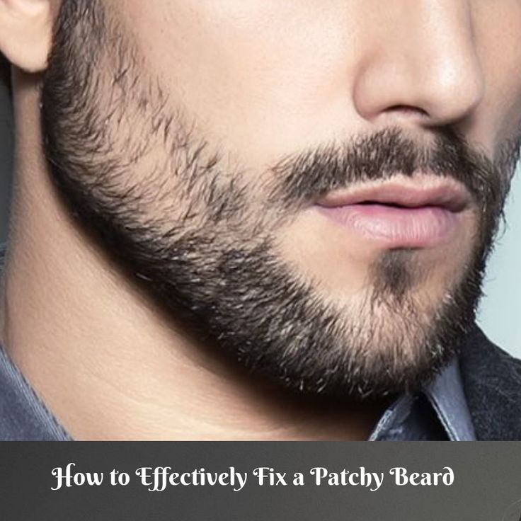 How to Effectively Fix a Patchy Beard (Bald Spots