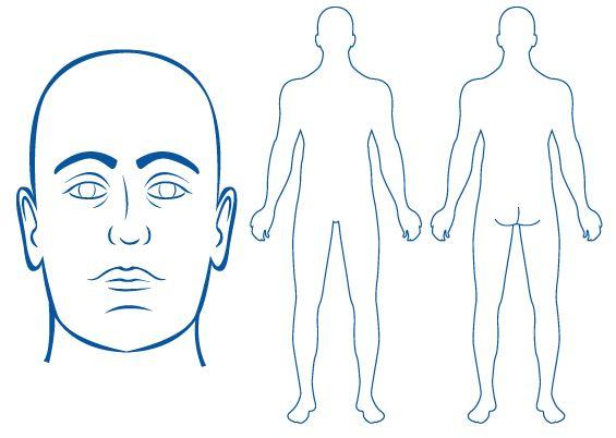 Body Diagrams For Charting Keninamas