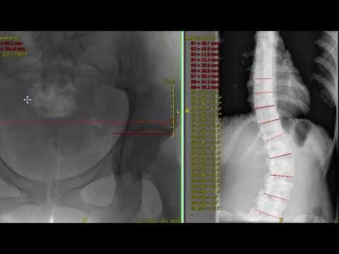 Сколиоз связан с Лимбом несоответствие длины | Эль-Пасо обратно клинике® • 915-850-0900