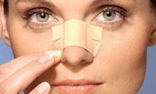 Μαύρα στίγματα στη μύτη; Πώς θα τα εξαφανίσεις
