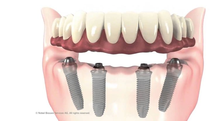 [What is All on 4?] ------------------------ ❗❗ All-on-4 is an exceptional quality dental implant which is usually ready to use immediately.  After placing the implants into the front bones, a bridge with ten teeth can be screwed onto them within a day.  #allon4 #dentistry #dentalclinic #cvitaminclinic #szeged #hungary