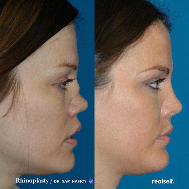 From cost to recovery time. in 2020 Rhinoplasty