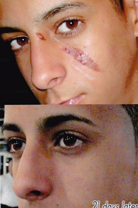 Great results on a burn--and can't see a scar anywhere!!