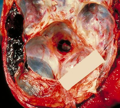 Traumatic brain injury-Subdural hematoma