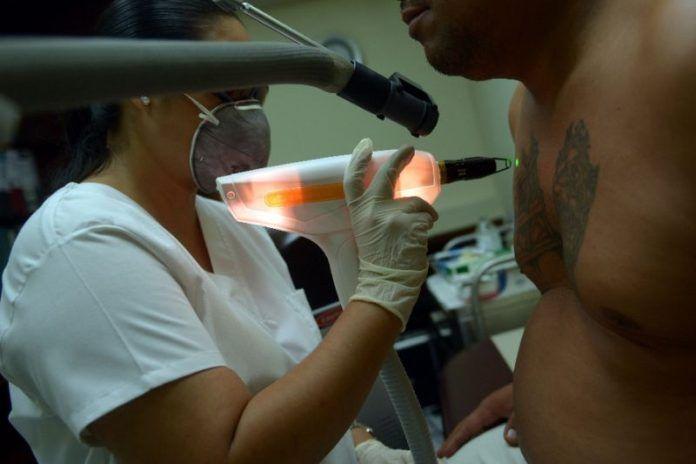 Dövme Sildirme İşlemi Nasıl Yapılır?