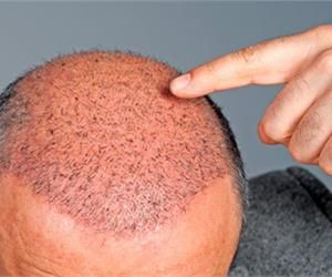 This Herb Stops Balding Immediately And Restarts Hair Growth