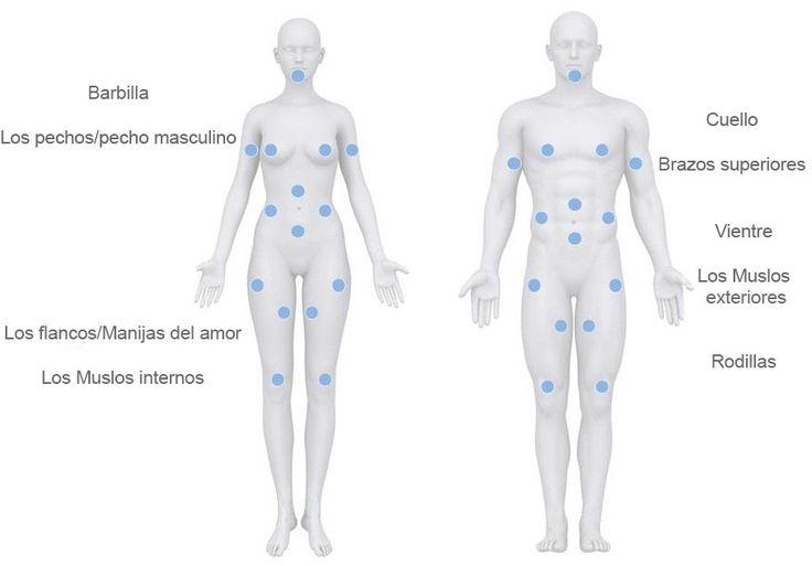 La Liposucción VASER -  #estética  #cirugíaplástica #Liposucción