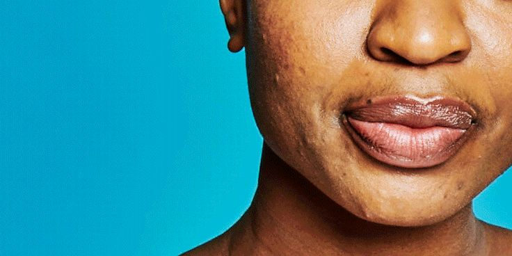 The 11 Best New Skin-Care Products for Oily and Acne-Prone Skin