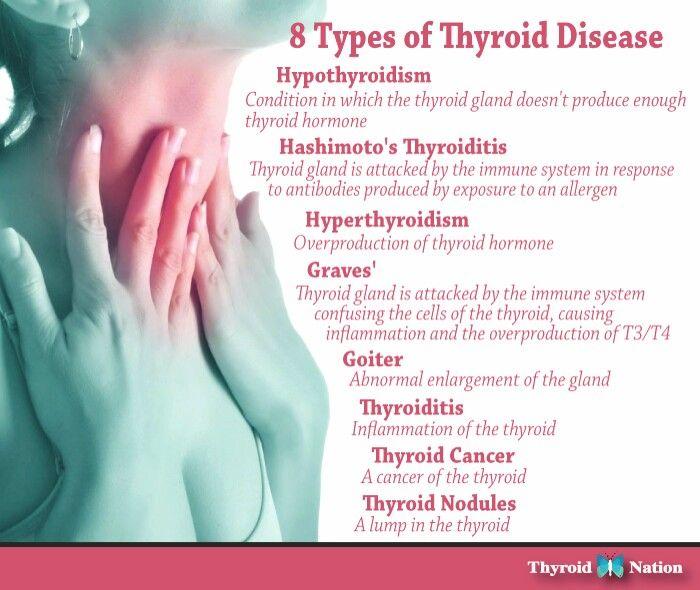 Viral Infection Link To Sjogren S Syndrome: 90 Best Hypothyroidism Images On Pinterest