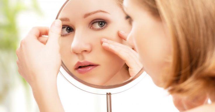 Konvenčná liečba akné zlyhala? Tuto vám ponúkame zásady ortomolekulárnej medicíny zamerané na stravu a výživné látky.