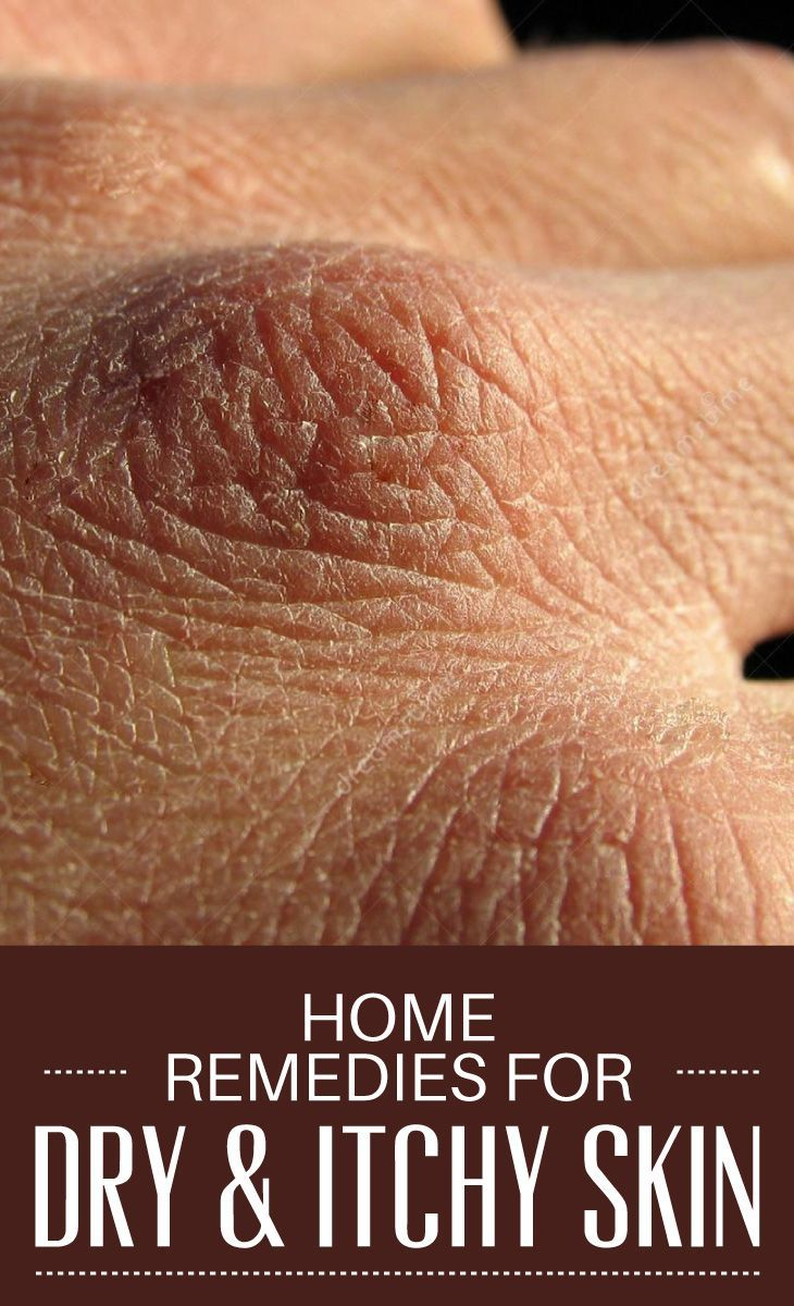 Dry and itchy skin is a problem faced by many of us every day, especially during the winter season....