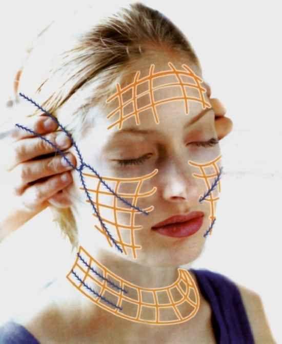 косметические нити для подтяжки лица
