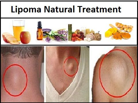 Best Natural Treatment For Skin Cancer