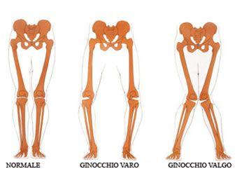 noene-ginocchio-valgo-varo.jpg (346×244)