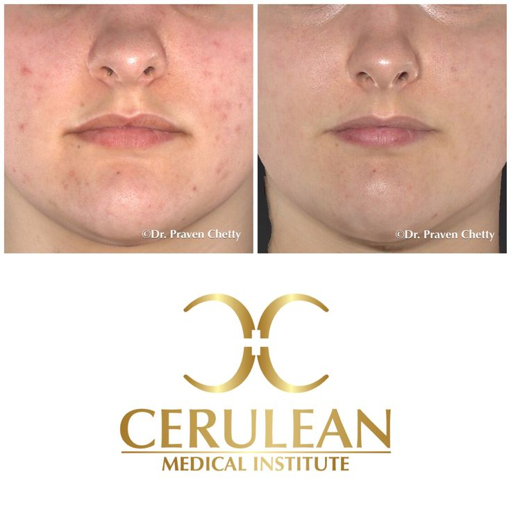 Acne Treatment before and after photos illustrating healthy flawless skin after a series of customised acne treatments at Cerulean Medical Institute✨ #Acne #AcneTreatment #BeforeAndAfter #Healthy #Skin #FlawlessSkin #Cosmetic #Dermatology #CeruleanMedicalInstitute #DrPravenChetty #RealSelf #TopDoctor #Kelowna #Okanagan