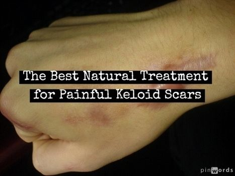 1000 ideas about keloid scar treatment on pinterest for Natural remedies for tattoo removal