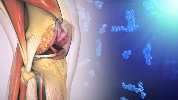 Hyaluronic Acid and Osteoarthritis of the Knee; Viscosupplementation Rooster Comb Injections.