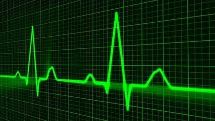 ECG heart (c)