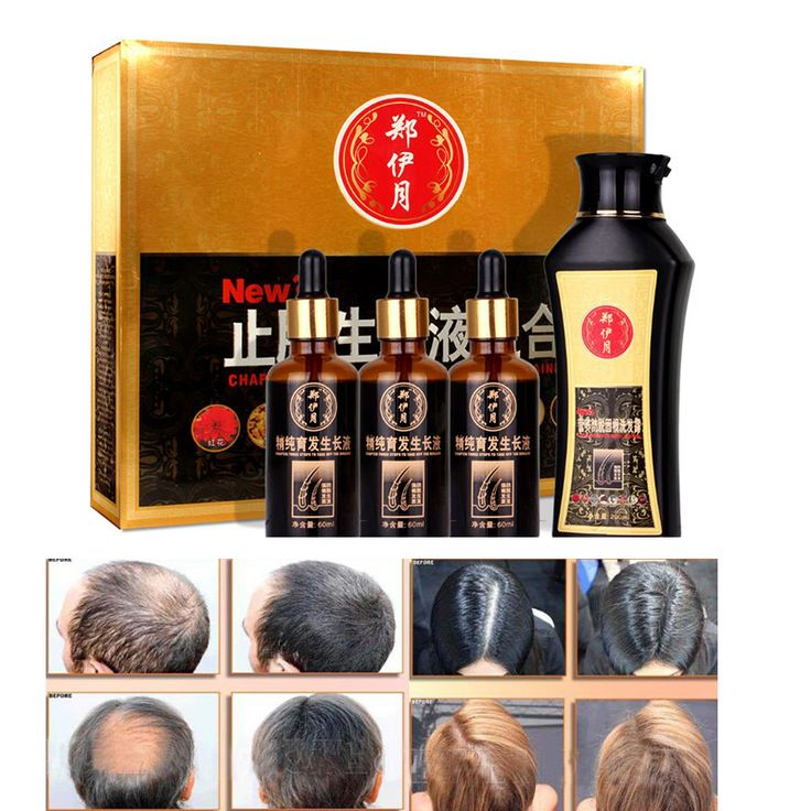 Chinese Medicine Real Result Hair Loss Treatment Set Sunburst Hair Regrowth Essence Liquid 30mlx3 +Anti Hair Loss Shampoo 200ml