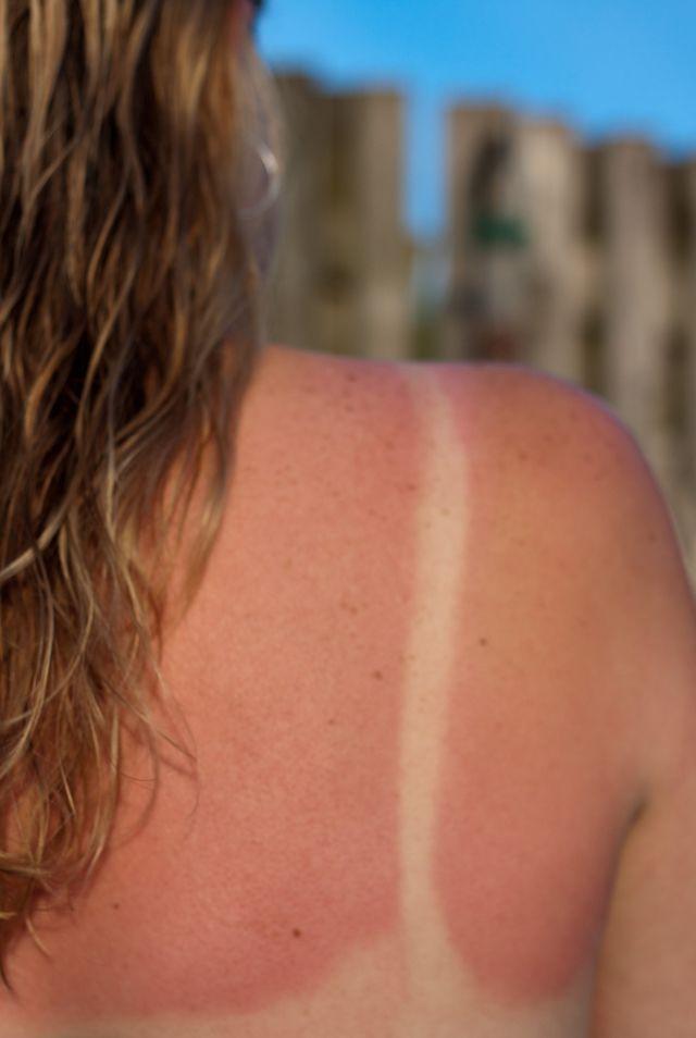 Tratamientos para quemaduras de piel