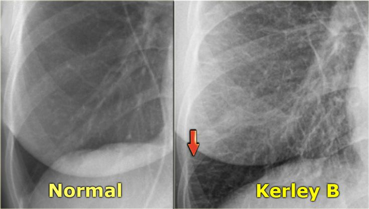 Chest X-Ray - Heart Failure - Kerly B/septal lines, caused by fluid leaks into the peripheral interlobular septa, seen in peripheries of lungs near costophrenic angles, running perpendicular to the pleura (part of interstitial stage of CCF (Stage II CCF - fluid leakage into the interlobular & peribronchial interstitium)