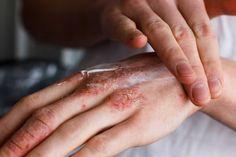 Hände werden ständig benutzt und belastet. Wenn Sie raue Hände haben, können Sie diese mit Schüßlersalzen wieder stärken.