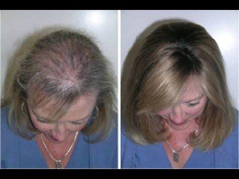 Como fazer o cabelo parar de cair e crescer muito mais rápido e resistente c/ esta receita caseira - YouTube