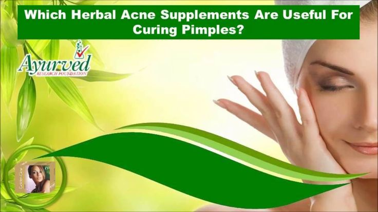 Dear friends in this video we are going to discuss about which herbal acne supplements are useful for curing pimples. You can find more details about Golden Glow capsules at http://www.ayurvedresearch.com/herbal-acne-treatment.htm If you liked this video, then please subscribe to our YouTube Channel to get updates of other useful health video tutorials.