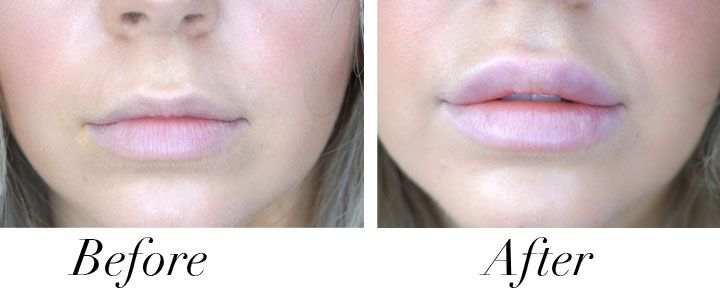 Before and after with Juvederm Ultra lip fillers
