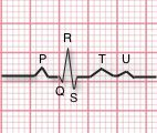 ECG with P Wave, PR Interval, QRS complex and T wave