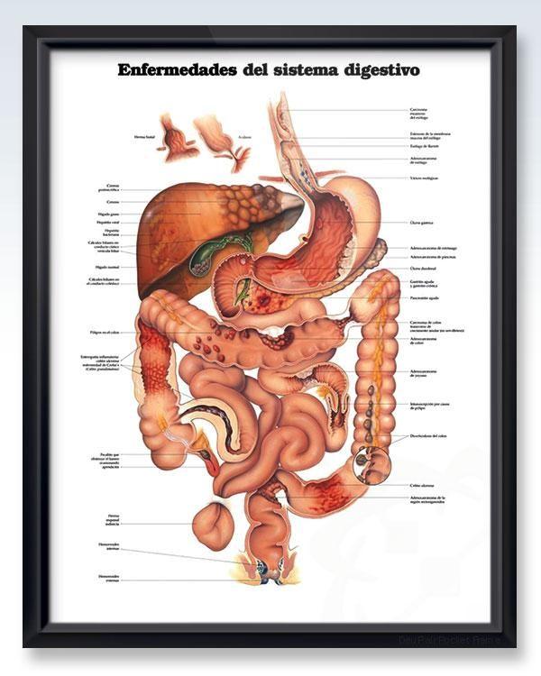 Enfermedades del sistema digestivo 20x26 Anatomy Poster