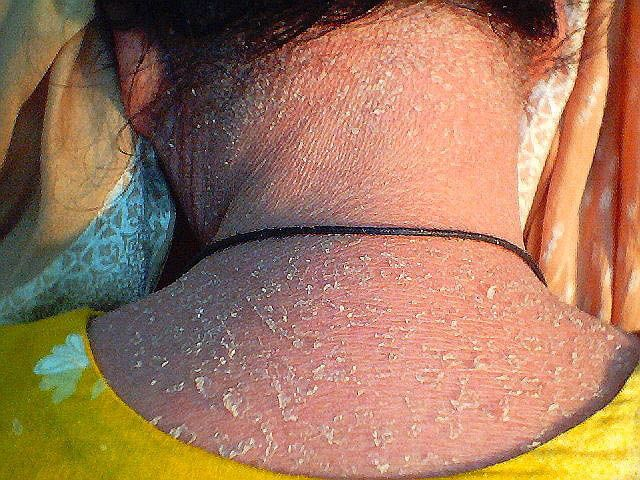 14 Best Images About Ichthyosis On Pinterest
