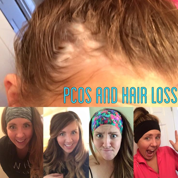PCOS, Hair loss, and amazing headbands